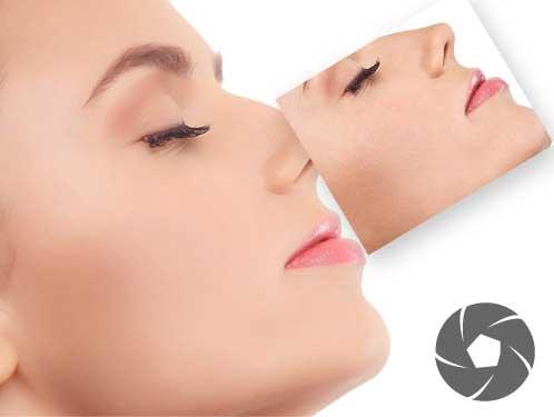 ブリッジRAWで顔の肌を一瞬できれいにするレタッチ方法