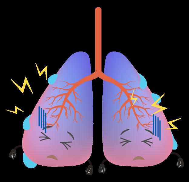 具合の悪い肺のイラスト