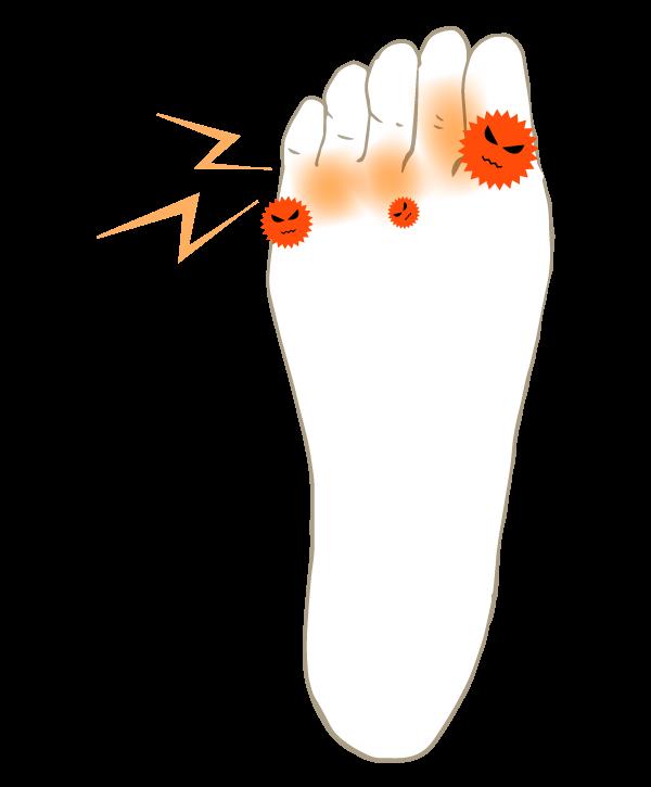 水虫が繁殖した足の裏のイラスト