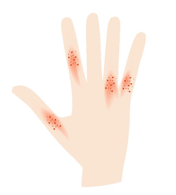 指に湿疹がでた手のイラスト