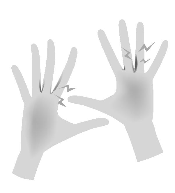 白黒の手荒れの手のイラスト