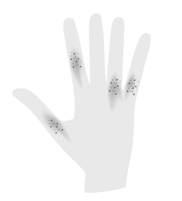 白黒の指に湿疹がでた手のイラスト