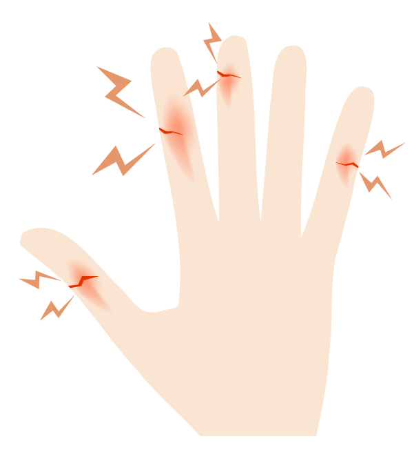 切り傷が多い手のイラスト