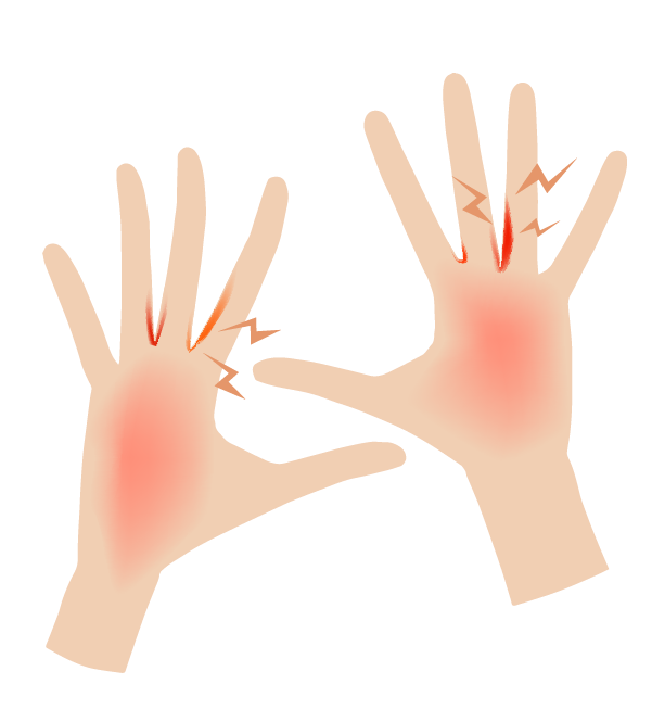 手荒れの手のイラスト