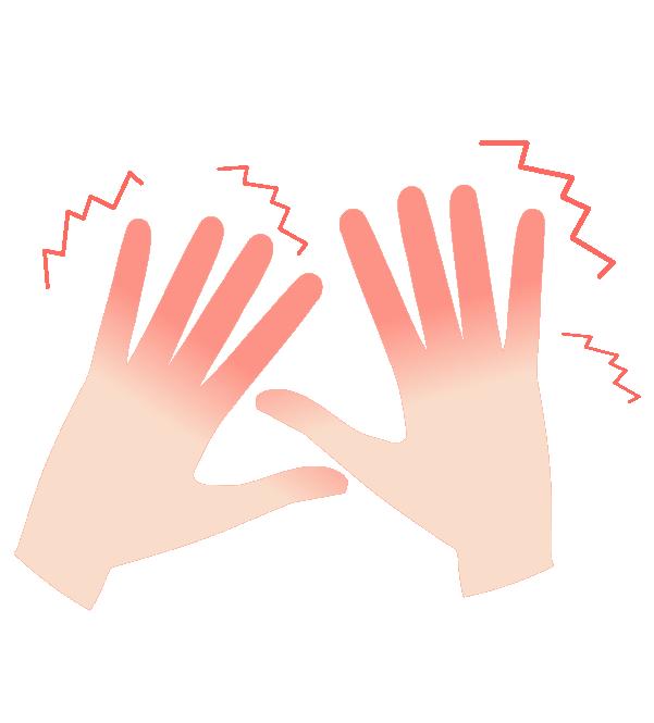 霜焼けの手のイラスト