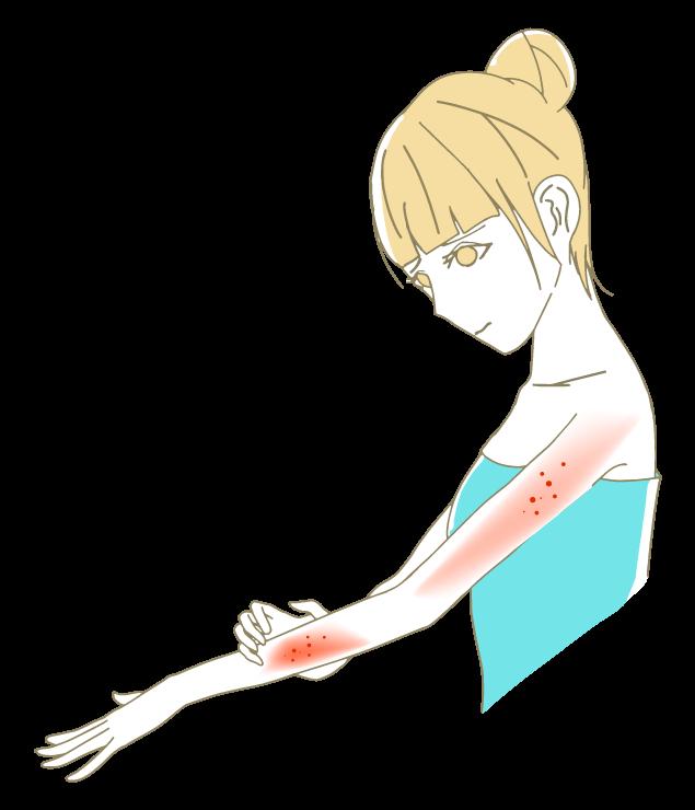 腕・肩に湿疹が出る女性のイラスト