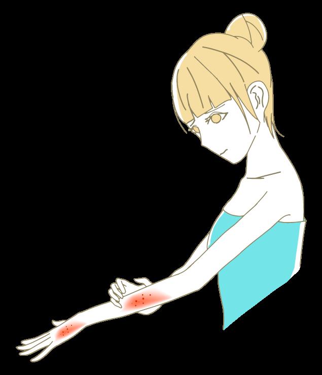 腕・手の甲に湿疹が出る女性のイラスト