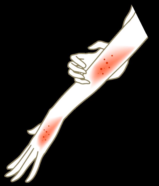 湿疹・乾燥肌の挿絵のイラスト