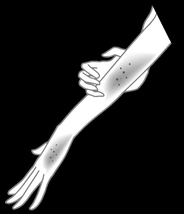 湿疹・乾燥肌の挿絵(白黒)のイラスト